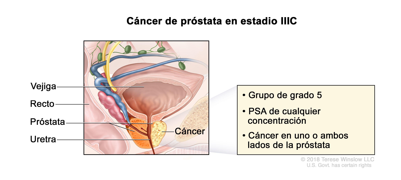 Cancer de colon que organos afecta., Cancer prostata y vejiga