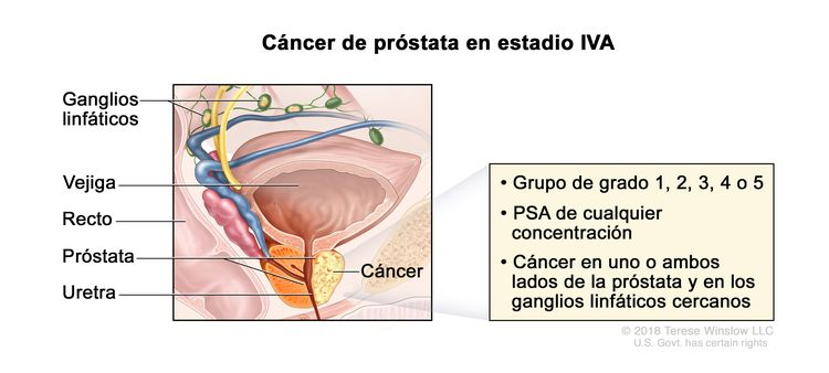 Cáncer de próstata en estadio IVA. En la imagen se observa cáncer en un lado de la próstata y en los ganglios linfáticos cercanos. El PSA es de cualquier concentración y el grupo de grado es 1 ,2, 3, 4 o 5. También se muestran la vejiga, el recto y la uretra.