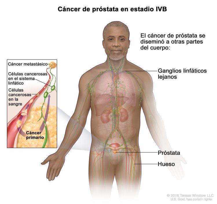 Cáncer de próstata en estadio IVB. En la imagen se observan otras partes del cuerpo donde es posible que el cáncer de próstata se haya diseminado, como los ganglios linfáticos lejanos y el hueso. En un recuadro, se muestran células cancerosas que se diseminan desde la próstata, a través de la sangre y el sistema linfático, hasta otra parte del cuerpo donde se formó el cáncer metastásico.