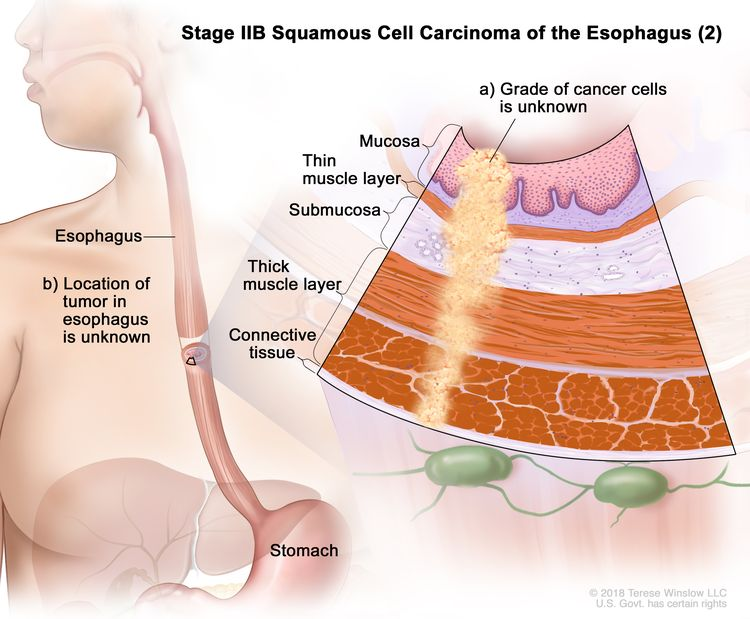 Stage IIB squamous cell carcinoma of the esophagus (2); drawing shows the esophagus and stomach. An inset shows (a) cancer cells of an unknown grade in the mucosa layer, thin muscle layer, submucosa layer, thick muscle layer, and connective tissue layer of the esophagus wall. Also shown is (b) the location of the tumor in the esophagus is unknown.