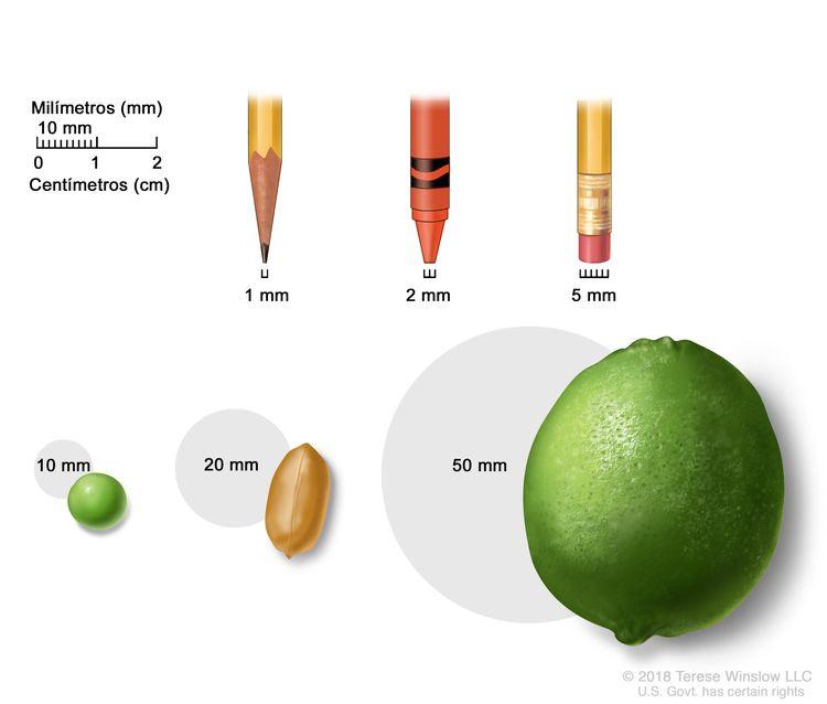 En la imagen se muestran objetos comunes de distintos tamaños en milímetros (mm): la punta fina de un lápiz (1 mm), la punta de un crayón nuevo (2 mm), la goma de borrar de un lápiz (5 mm), una arveja (10 mm), un maní (20 mm) y una lima (50 mm). También se observa una regla de dos centímetros (cm) que muestra que 10 mm equivalen a 1 cm.