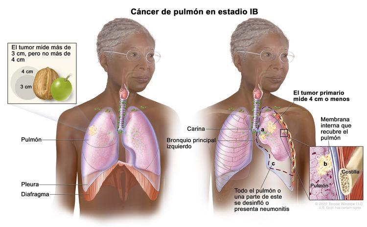 Cáncer de pulmón en estadio IB. Se observan dos imágenes. En la imagen de la izquierda, se observa un tumor en el pulmón derecho que mide más de 3 cm, pero no más de 4 cm. También se muestran la pleura y el diafragma. En la imagen de la derecha, se observa un tumor primario en el pulmón izquierdo que mide 4 cm o menos; además, se observan las siguientes situaciones: a) cáncer en el bronquio principal izquierdo; b) cáncer en la membrana interna que recubre el pulmón (recuadro inferior); c) todo el pulmón o una parte de este se desinfló o presenta neumonitis (inflamación del pulmón). También se observan la carina y, en el recuadro inferior, una costilla.