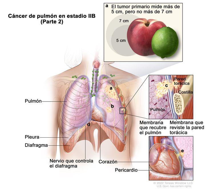 Cáncer de pulmón en estadio IIB (Parte 2). En la imagen se observa lo siguiente: a) un tumor primario que mide más de 5 cm, pero no más de 7 cm en el pulmón izquierdo (recuadro superior); b) un tumor separado en el mismo lóbulo del pulmón que el tumor primario. También se observa cáncer que se diseminó a los siguientes sitios: c) la pared torácica, la membrana que recubre el pulmón y la membrana que reviste la pared torácica (recuadro intermedio); d) el nervio que controla el diafragma; e) el pericardio (recuadro inferior). Además, se muestran la pleura, el diafragma, el corazón y en el recuadro intermedio, una costilla.