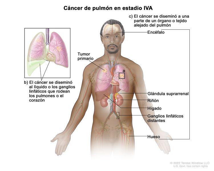 Cáncer de pulmón en estadio IVA. En la imagen se observa un tumor primario en el pulmón derecho y un tumor en el pulmón izquierdo. También se observan líquido o ganglios linfáticos cancerosos alrededor de los pulmones o el corazón (recuadro), además de otros órganos o tejidos donde se disemina el cáncer de pulmón, como el encéfalo, la glándula suprarrenal, el riñón, el hígado y los ganglios linfáticos distantes.