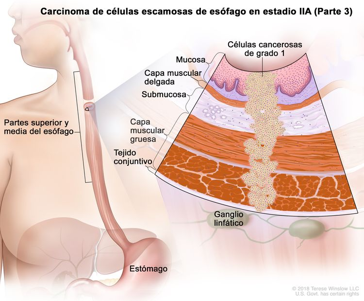 Carcinoma de células escamosas de esófago en estadio IIA (Parte 3). En la imagen se observan las partes superior y media del esófago, y el estómago. En una ampliación, se muestran células cancerosas de grado 1 en la mucosa, la capa muscular delgada, la submucosa, la capa muscular gruesa y el tejido conjuntivo de la pared de las partes superior y media del esófago. También se muestran ganglios linfáticos.