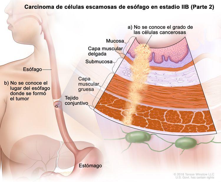 Carcinoma de células escamosas de esófago en estadio IIB (Parte 2). En la imagen se observan el esófago y el estómago. En una ampliación se muestra lo siguiente: a) no se conoce el grado de las células cancerosas en la mucosa, la capa muscular delgada, la submucosa, la capa muscular gruesa y el tejido conectivo de la pared del esófago; b) no se conoce el lugar del esófago donde se formó el tumor.