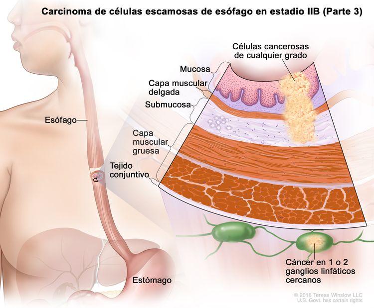 Carcinoma de células escamosas de esófago en estadio IIB (Parte 3). En la imagen se observan el esófago y el estómago. En una ampliación, se muestran células cancerosas de cualquier grado en la mucosa, la capa muscular delgada y la submucosa de la pared del esófago. También se observan la capa muscular gruesa y el tejido conjuntivo de la pared del esófago. Además, se muestra cáncer en 1 ganglio linfático cercano.