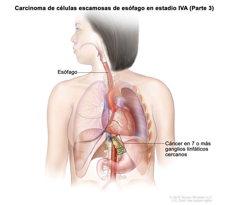 Carcinoma de células escamosas de esófago en estadio IVA (Parte 3). En la imagen se observa cáncer en el esófago y en 9 ganglios linfáticos cercanos.