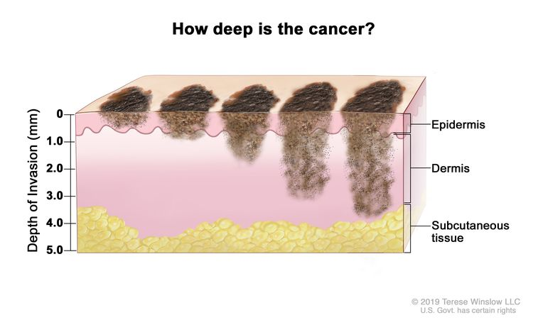 Melanoma staging (tumor thickness); drawing shows different depths of cancer invasion (0, 1.0, 2.0, 3.0, 4.0, and 5.0 mm) into the epidermis (outer layer of the skin), the dermis (inner layer of the skin), and the subcutaneous tissue below the dermis.