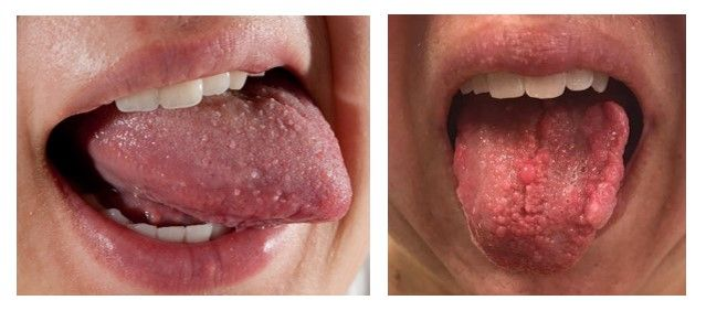 Meaning for papilloma, Papilloma medical define