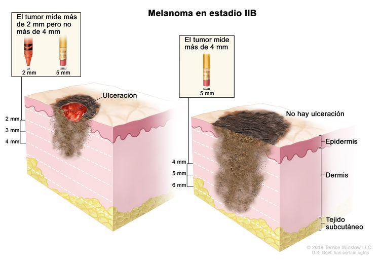 Dibujo de dos paneles del melanoma en estadio IIB. En el panel de la izquierda se observa un tumor que mide más de 2 mm pero no más 4 mm y hay ulceración (rotura de la piel). En el panel de la derecha se observa un tumor que mide más de 4 mm y no hay ulceración. También se muestran la epidermis (capa superficial o externa de la piel), la dermis (capa profunda o interna de la piel) y el tejido subcutáneo debajo de la dermis.