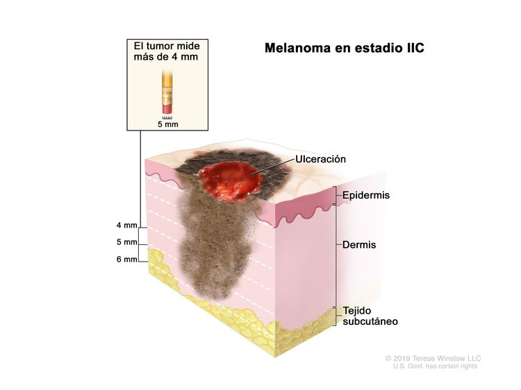 Melanoma en estadio IIC. En el dibujo se muestra un tumor que mide más de 4 mm de grosor y hay ulceración (rotura de la piel). También se observan la epidermis (capa superficial o externa de la piel), la dermis (capa profunda o interna de la piel) y el tejido subcutáneo debajo de la dermis.