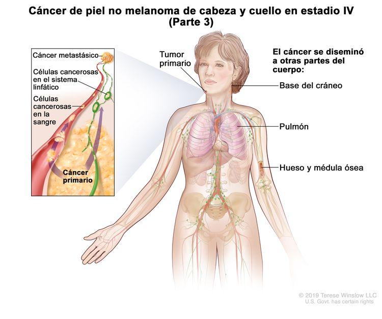 Cáncer de piel no melanoma de cabeza y cuello en estadio IV (Parte 3). En la imagen se observa un tumor primario en la cara y otras partes del cuerpo donde es posible que el cáncer de piel no melanoma se disemine, como la base del cráneo, el pulmón, el hueso y la médula ósea. En el recuadro se muestran las células cancerosas que se diseminan a través de la sangre y el sistema linfático a otra parte del cuerpo donde se formó el cáncer metastásico.