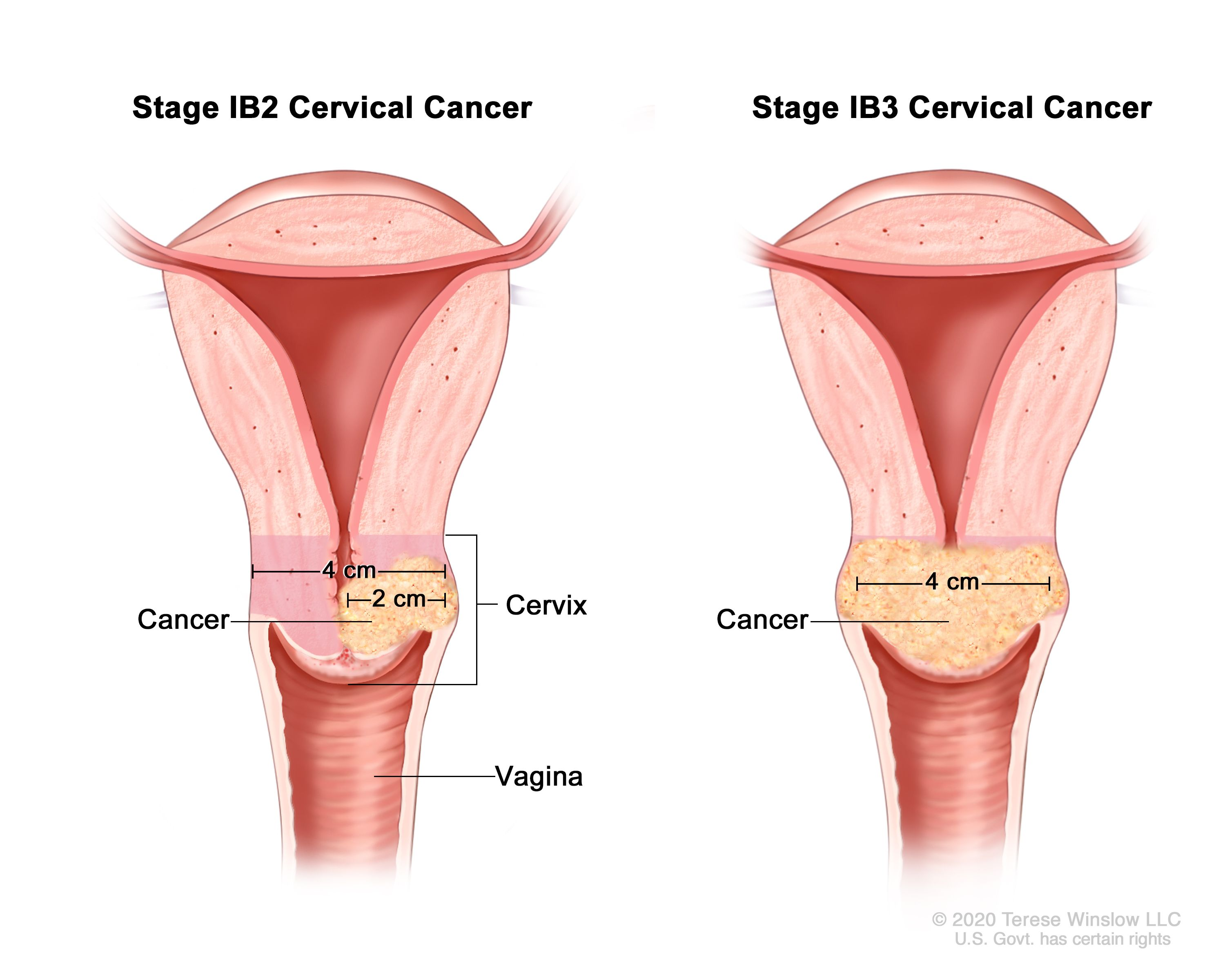 Cervical Cancer Treatment Pdq Patient Version National Cancer Institute