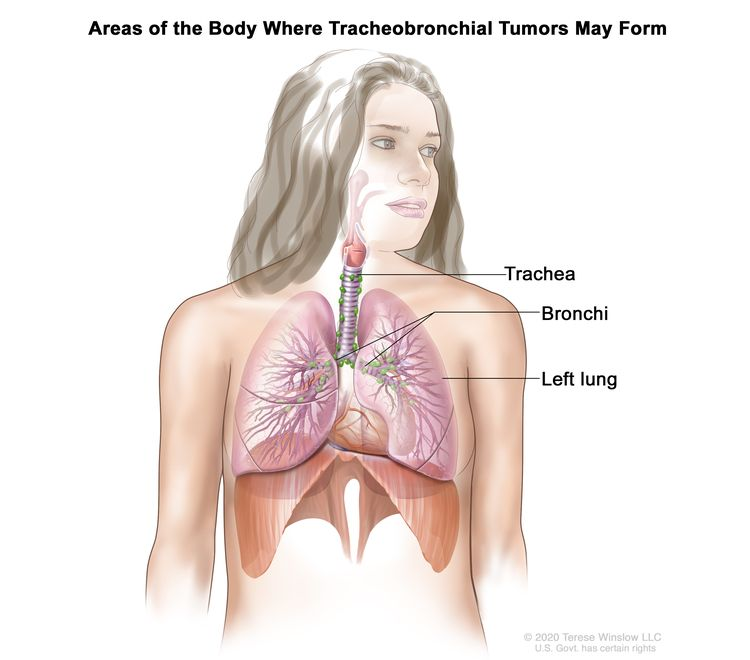 Drawing shows areas of the body where tracheobronchial tumors may form, including the trachea and the bronchi (large airways of the lung). The left lung is also shown.