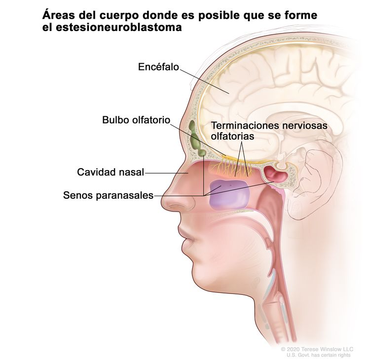 En la imagen se observan las áreas del cuerpo donde es posible que se formen tumores del estesioneuroblastoma, incluso las terminaciones nerviosas olfatorias, el bulbo olfatorio, la cavidad nasal, los senos paranasales y el encéfalo.