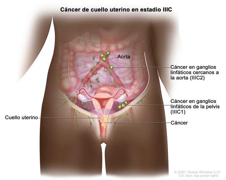 Cáncer de cuello uterino en estadio IIIC. En la imagen se observa cáncer en estadio IIIC1 que se diseminó desde el cuello uterino a los ganglios linfáticos de la pelvis, y cáncer en estadio IIIC2 que se diseminó desde el cuello uterino a los ganglios linfáticos cercanos a la aorta.