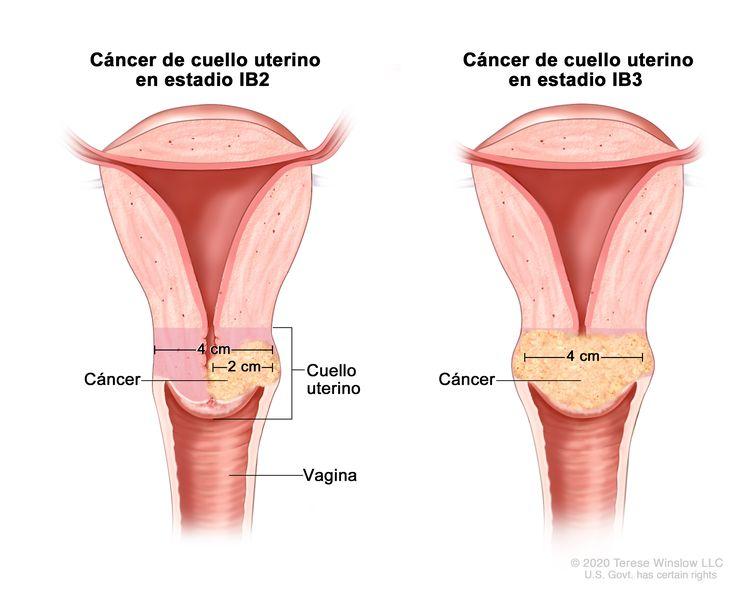 Cáncer de cuello uterino en estadios IB2 y IB3. En la imagen se observan dos cortes transversales del cuello uterino y la vagina. En la imagen de la izquierda se muestra cáncer de cuello uterino en estadio IB2, y el tumor mide más de 2 cm, pero no más de 4 cm. En la imagen de la derecha se muestra cáncer de cuello uterino en estadio IB3, y el tumor mide más de 4 cm.