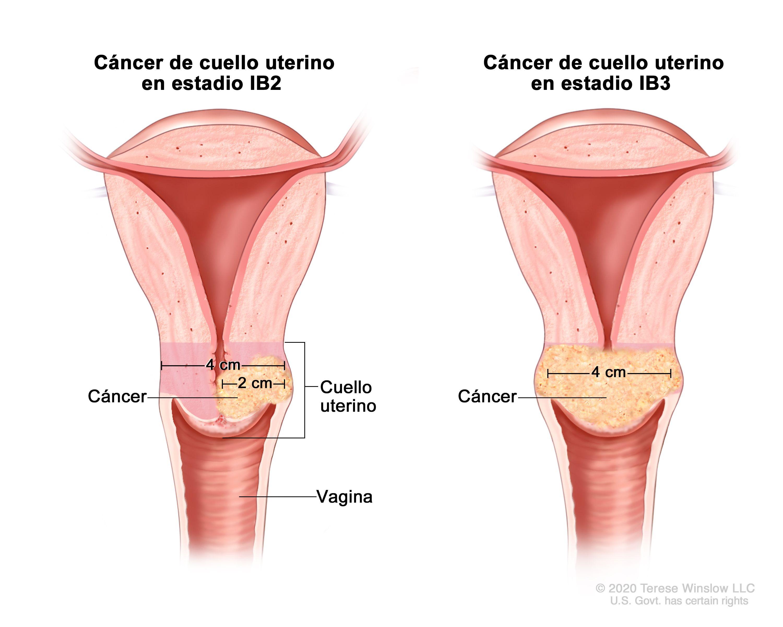 Tratamiento del cáncer de cuello uterino (PDQ®)–Versión para pacientes -  Instituto Nacional del Cáncer