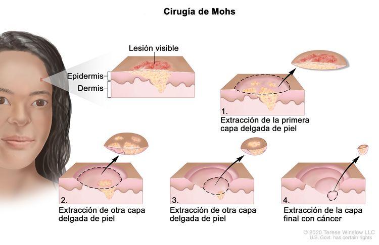 Cirugía de Mohs. En la imagen se observa un paciente con cáncer de piel en la cara. En la ampliación se muestra un trozo de piel con un cáncer en la epidermis (capa exterior de la piel) y la dermis (capa interna de la piel). También se muestra una lesión visible en la superficie de la piel. En cuatro ampliaciones numeradas se observa la extracción de capas delgadas de la piel, una por una hasta que se termina de extirpar todo el cáncer.