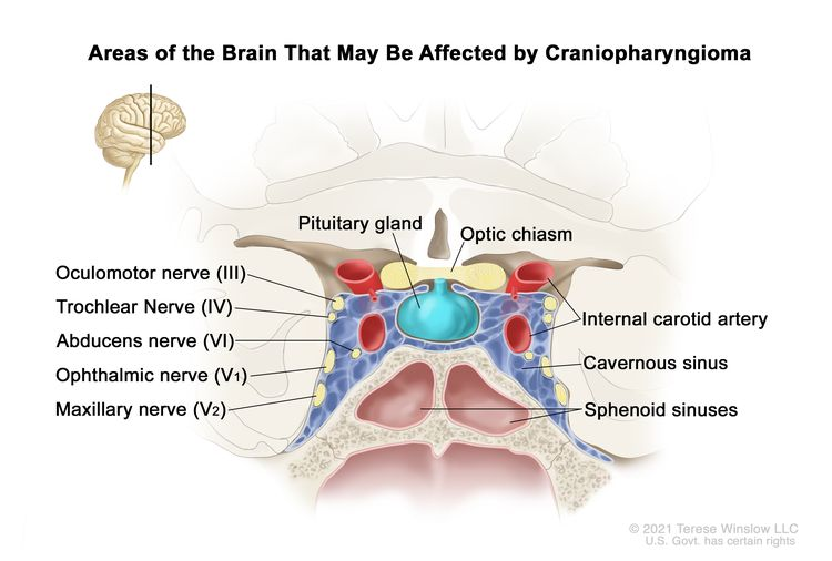 Drawing showing a coronal view of the inside of the brain where craniopharyngiomas may form. A tumor is shown between the pituitary gland and the optic chiasm. Also shown is the oculomotor nerve (III), trochlear nerve (IV), abducens nerve (VI), ophthalmic nerve (V1), maxillary nerve (V2), internal carotid artery, and the cavernous and sphenoid sinuses.