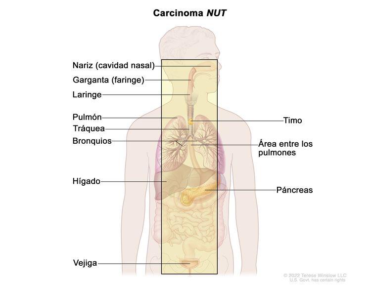 En la imagen se observan las áreas donde es posible que se forme el carcinoma de línea media, como la nariz (cavidad nasal), la garganta (faringe), la laringe, el pulmón, el timo, la tráquea, los bronquios, el área entre los pulmones, el hígado, el páncreas y la vejiga.