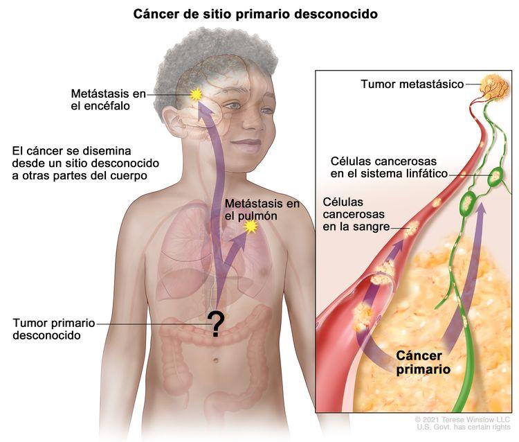 Carcinoma de sitio primario desconocido. En la imagen se muestra un tumor primario que se diseminó desde un sitio desconocido a otras partes del cuerpo (el pulmón y el encéfalo). En un recuadro, se observan las células cancerosas que se diseminan desde el cáncer primario, a través de los sistemas sanguíneo y linfático, a otra parte del cuerpo donde se formó un tumor metastásico.