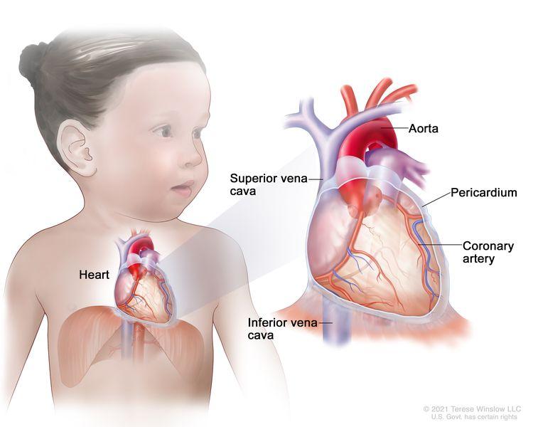 Anatomy of the heart; a pullout shows the aorta, superior vena cava, pericardium, coronary artery, and inferior vena cava.