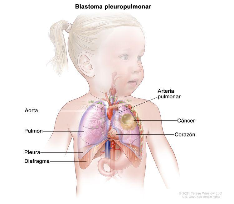 En la imagen se observan las áreas donde es posible que se forme el blastoma pleuropulmonar, como la aorta, la arteria pulmonar, el pulmón, el corazón, la pleura y el diafragma. También se muestra cáncer en el pulmón izquierdo.