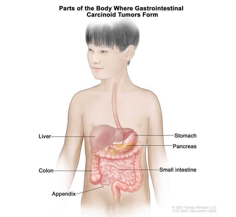 Parts of the body where gastrointestinal carcinoid tumors form; drawing of the gastrointestinal tract showing the liver, stomach, pancreas, small intestine, colon, and appendix.