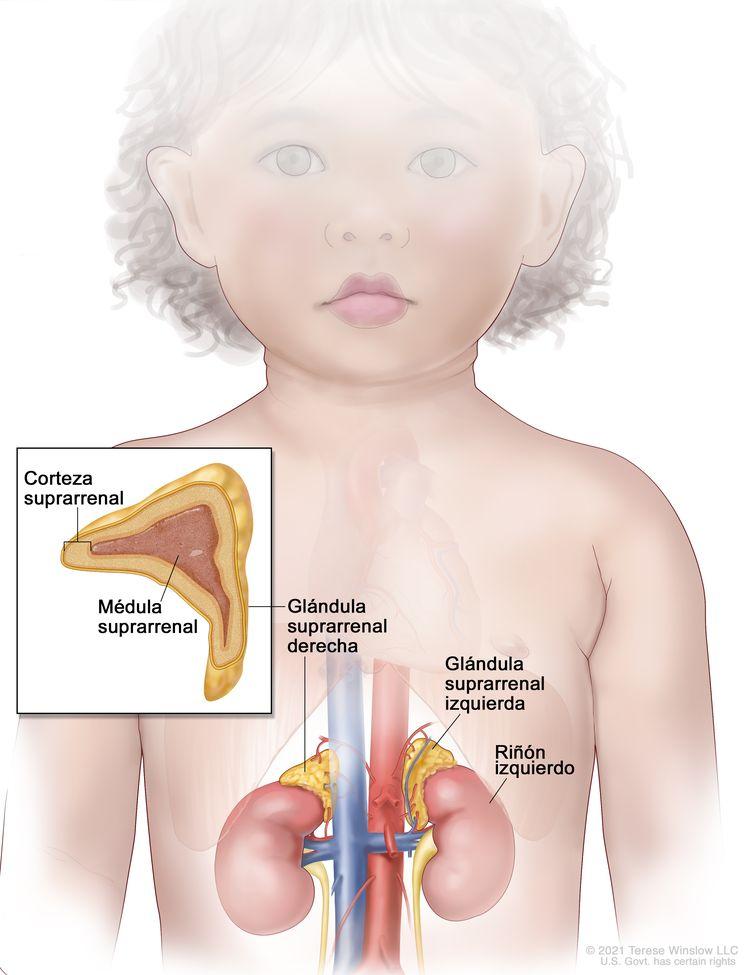 Anatomía de la glándula suprarrenal. En la imagen del abdomen se muestran las glándulas suprarrenales izquierda y derecha, los riñones izquierdo y derecho y los vasos sanguíneos mayores. En el recuadro se observa una sección de la glándula suprarrenal que muestra la corteza suprarrenal y la médula suprarrenal.