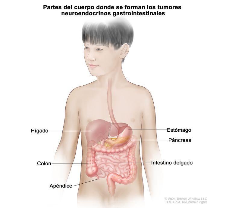 Partes del cuerpo donde se forman los tumores carcinoides gastrointestinales. En la imagen del aparato digestivo se muestran el hígado, el estómago, el páncreas, el intestino delgado, el colon y el apéndice.
