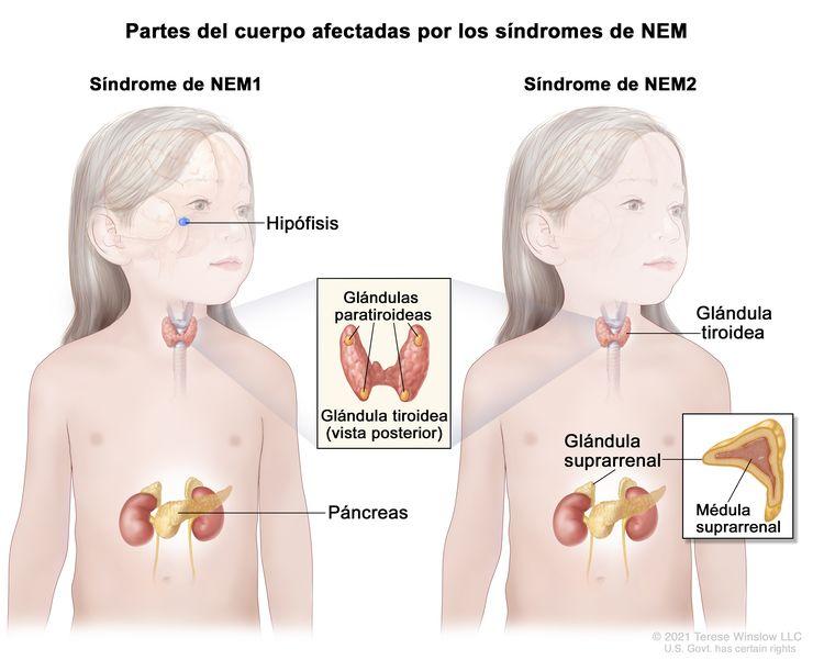 Partes del cuerpo afectadas por los síndromes de neoplasia endocrina múltiple (NEM); la imagen de la izquierda muestra las partes del cuerpo afectadas por el síndrome de NEM1, incluso la hipófisis, las glándulas paratiroideas y el páncreas. En un recuadro se muestra la vista posterior de la glándula tiroidea y las cuatro glándulas paratiroideas del tamaño de una arveja. La imagen de la derecha muestra las partes del cuerpo afectadas por el síndrome de NEM2, incluso la glándula tiroidea, las glándulas paratiroideas y las glándulas suprarrenales. En otro recuadro se muestra la médula suprarrenal (parte interna) de la glándula suprarrenal.